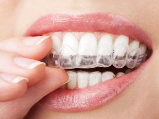 Close up of Invisalign® Clear Braces